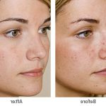 Comment traiter Definition of acne vulgaris according to who : acne comedonica definition | Traitements