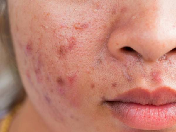 acne adulte complement alimentaire