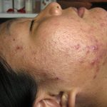 Comment traiter Definition of acne in medical terminology / hormonal acne get rid Remèdes